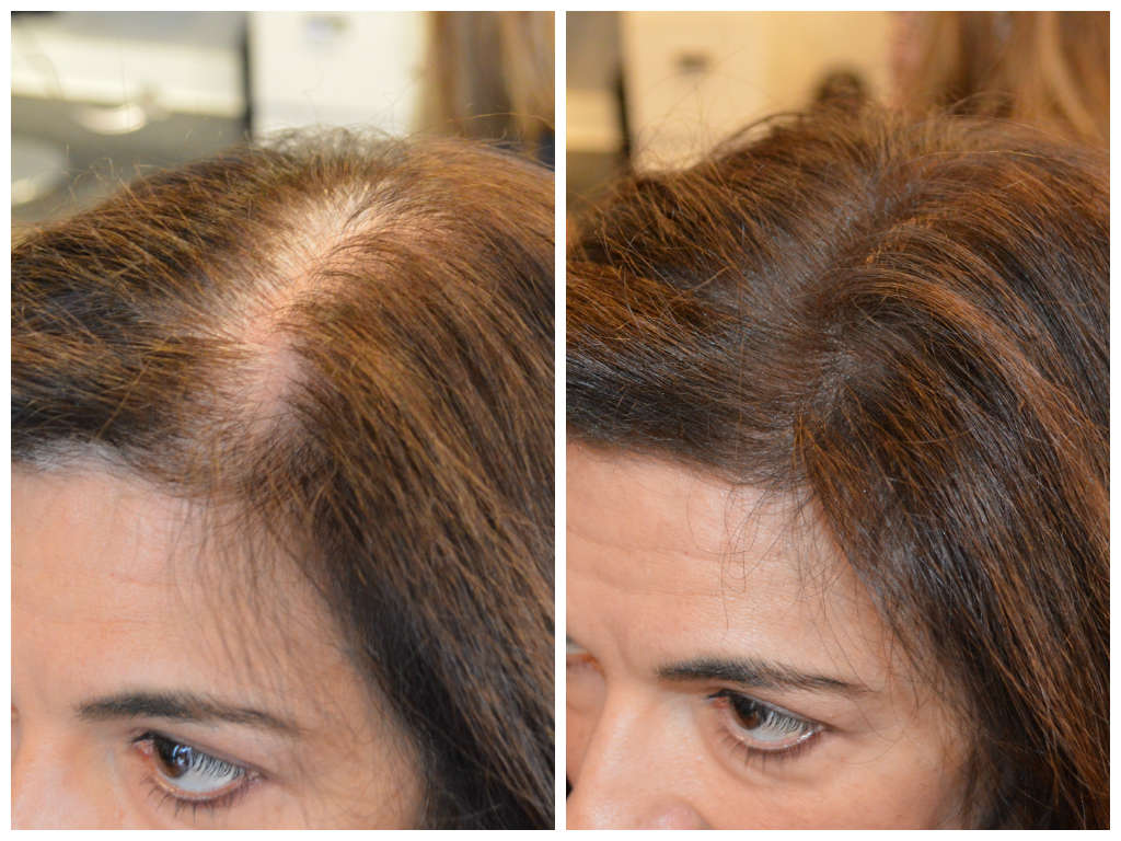 Instant Coverage Of Roots And Thinning Patches New